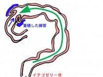 高圧浣腸2